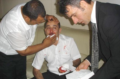 Gazeteciler kongresinde Gazetecilere saldırı!.. 7