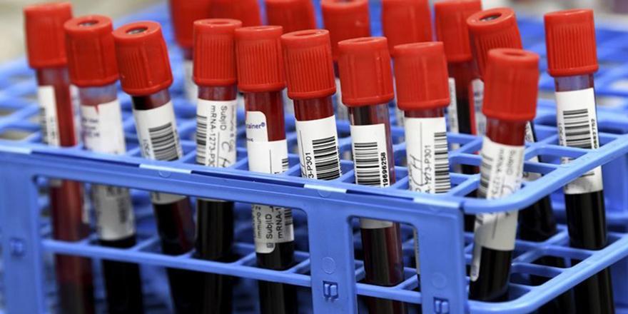 Koronavirüste mutant uyarısı