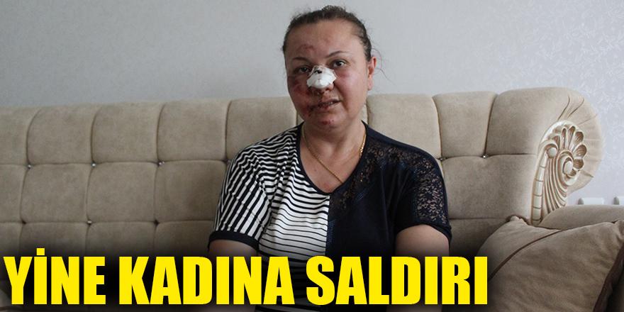 YİNE KADINA SALDIRI