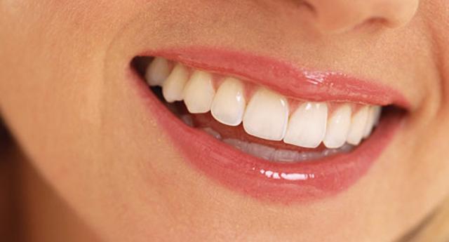 Bozuk dişlere estetik müdahale
