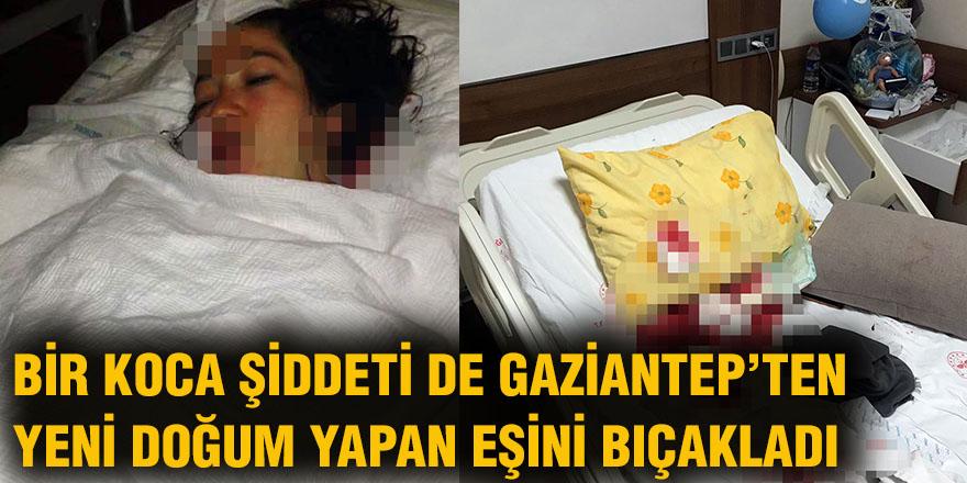 Bir koca şiddeti de Gaziantep'ten
