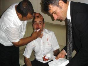 Gazeteciler kongresinde gazeteciye saldırı...